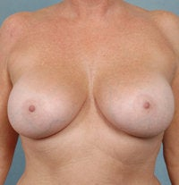 Breast Augmentation after 479480