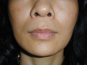 Radiesse in smile lines (Nasolabial Folds) before 100937