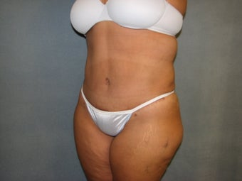 Tummy Tuck after 127655