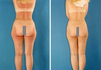 Liposuction before 636249