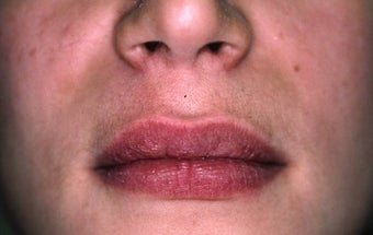 Lip Augmentation after 149213