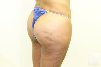 Brazilian Butt Lift 383731