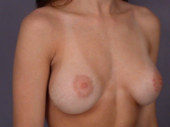 Breast Revision before 307221