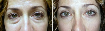 Cosmetic eyelid surgery before 127641