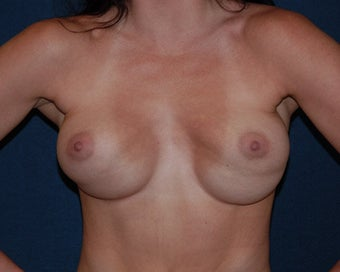 breast implant revision before 334111