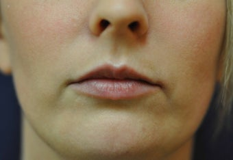 Lip Augmentation with Filler before 560211
