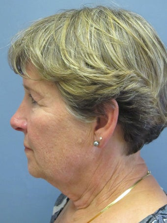Neck Lift, Platysmaplasty 634749