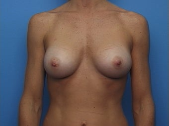 Breast Augmentation after 136547