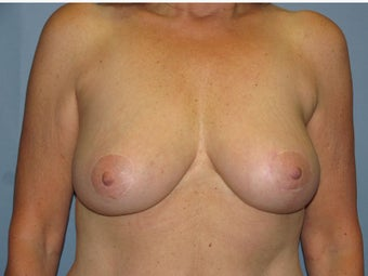 Breast Reduction, Breast Lift after 547971