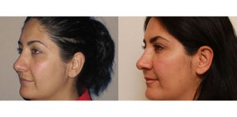 Facial Rejuvenation, non-surgical after 450125
