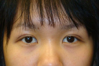 Double lid Asian blepharoplasty after 103872