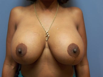 Breast Implant Removal and Breast Lift before 589921