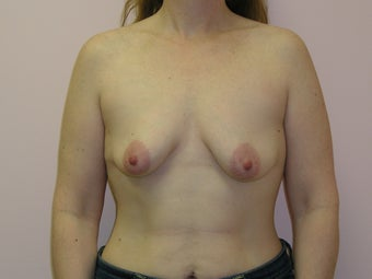 Breast Lift with Implants 312862