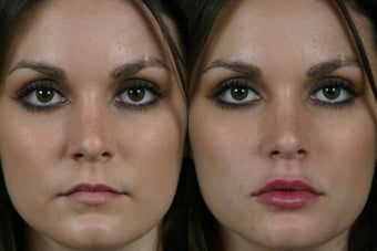 Juvederm Ultra Plus before 296319
