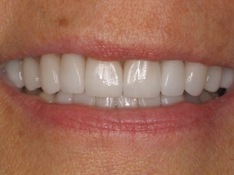 12 Porcelain Veneers after 511449