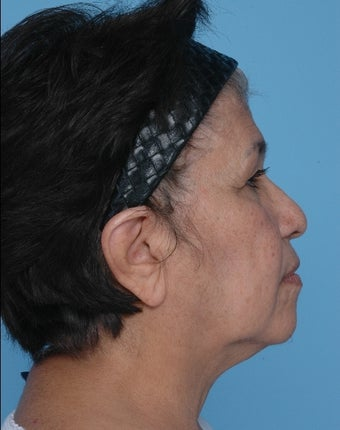 Upper Blepharoplasty and SMAS Facelift before 67247
