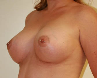 Augmentation Mammaplasty (Breast Implants) after 226491