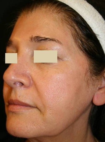 Sculptra Liquid Lift before 137158