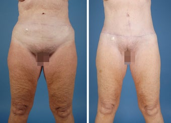Flank Excision, Abdominoplasty Scar Revision, Liposuction of the Back before 303691