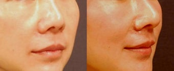 Asian rhinoplasty after 523914
