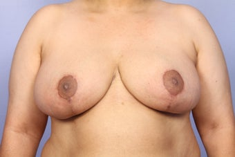 Breast Reduction after 309341
