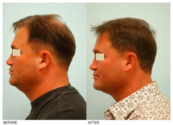 Crown (Vertex) Hair Transplant before 134770