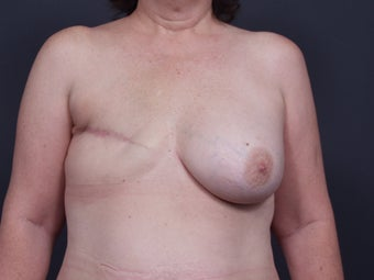 48 Year Old Female for Breast Reconstruction before 643246