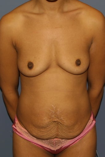 Mommy Makeover Breast augmentation and tummy tuck before 617914