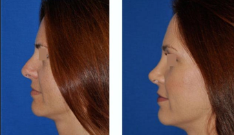 Revision Rhinoplasty before 293544