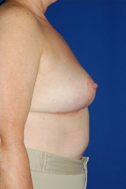 Heavy breast treatment, implant removal and breast lift after 158172