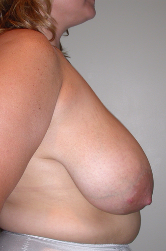 Breast reduction via a short scar technique