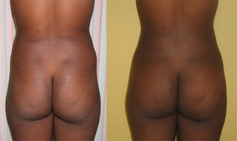 Buttock Augmentation  before 459509