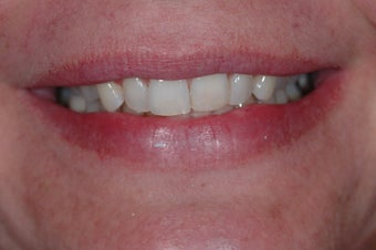 Combination Invisalign and Lumineers before 356802