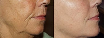 Sculptra before 378713