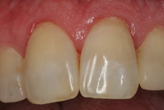 Internal Bleaching of Non-Vital Tooth after 379270