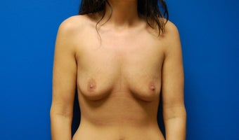 Breast augmentation before 363867
