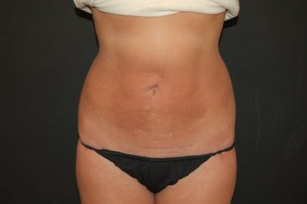 true tumescent liposuction  after 375595