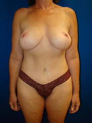 Abdominoplasty with breast lift surgery after 121141