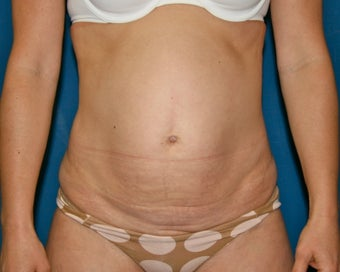 Liposuction of the Back and Abdomen 644853