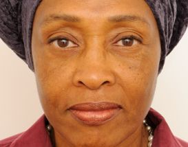 Lower Blepharoplasty (Lower Eyelids) after 376873