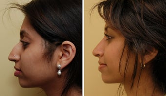 Ethnic Rhinoplasty before 271733
