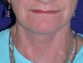 Necklift after 208438