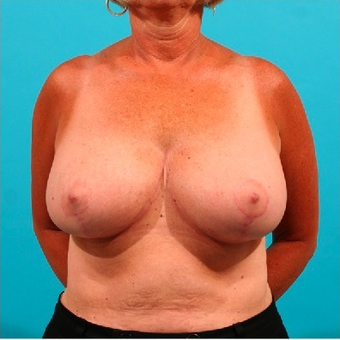 Breast Reduction after 55105