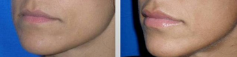 Lip Augmentation before 167641