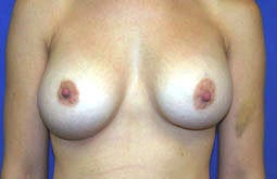 Breast Implants after 241826