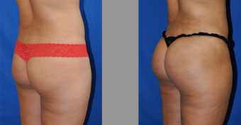 Brazilian Butt Lift Buttock Augmentation-Using Liposuction and Fat transfer