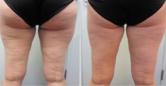 Cellulaze Laser Cellulite Reduction before 596648
