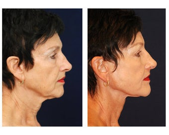 Lower Face and Neck Lift before 355125