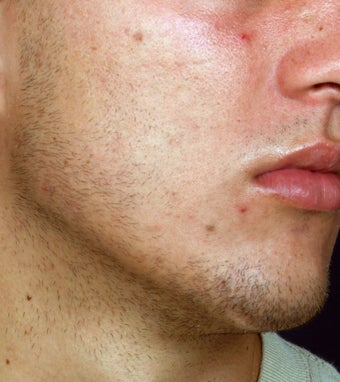 Acne Laser Treatment after 123325