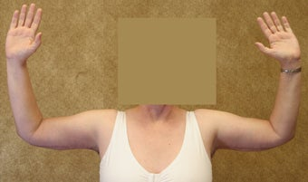 Brachioplasty or arm tuck 583684